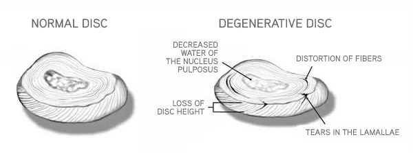 mage result for lumbar disc water content